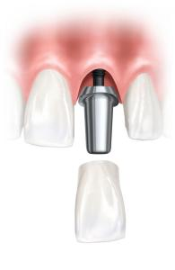 implantes1 (2)